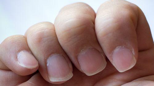 Заточка ногтей гитариста. У каждого может получиться своя форма ногтей, исходя из физиологии рук и угла постановки пальцев на бафик при первичной заточке